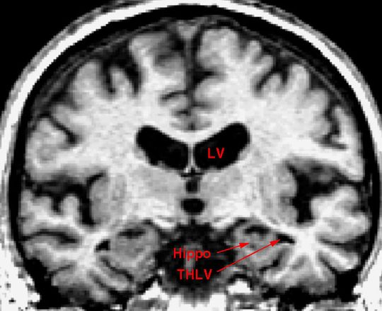 In this file photo, the brain of an older individual shows the early stages Alzheimer's disease. A new study suggestions a gum infection might be linked to the disease. (Photo: DEPARTMENT OF ANATOMY AND NE)